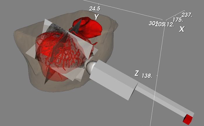 Ultrasound Imaging 700
