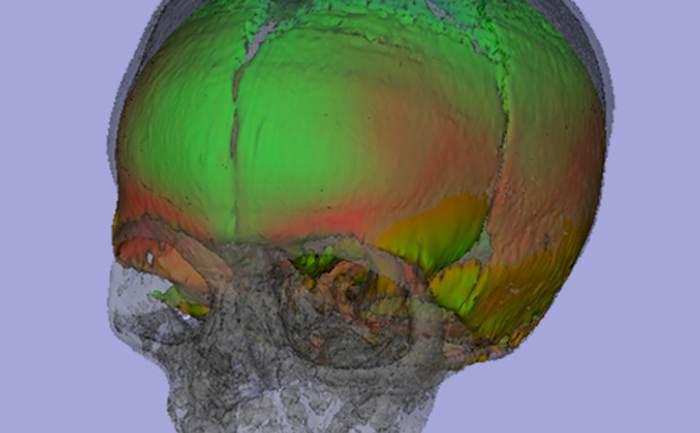 Example of craniofacial image