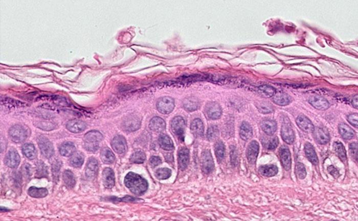 Example of digital pathology