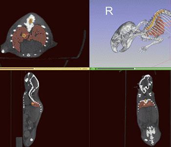 Screenshot of a system based on 3D Slicer